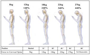 smartphones_neck_pressure_pain_dr_krystov_bock_active_quiropratica_chiropractor_algarve_quiropratico